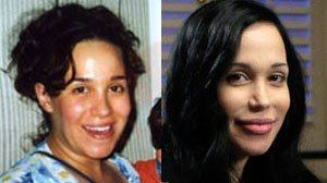 nadya_suleman_before_after_surgery_1